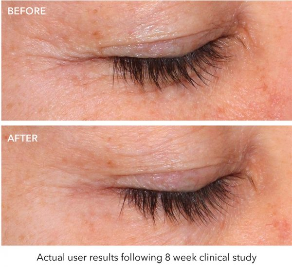 Quasar-eye-wrinkle-benefits-before-after-r